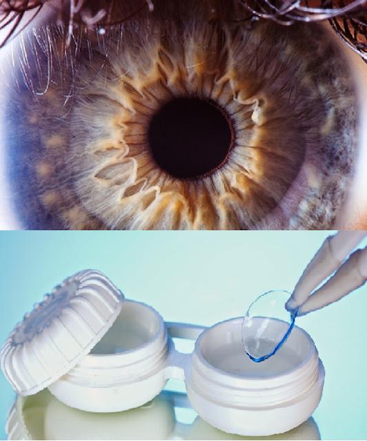 Imagem fonte: Hospital de Olhos/ Instituto Pró Visão
